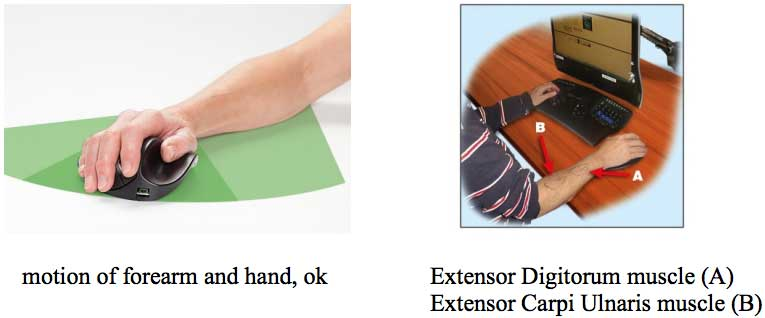 motion-of-forearm